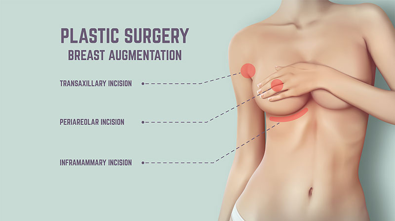 Breast augmentation - plastic surgery